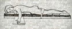 Decúbito Prono en mesa quirúrgica